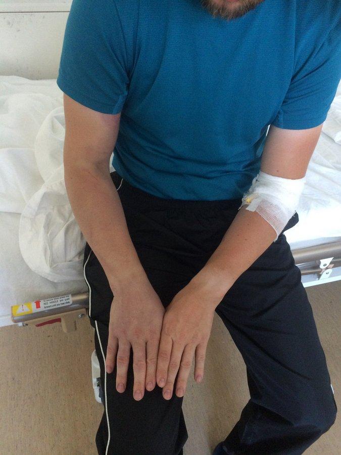 Укус гадюки - рука через сутки с лечением